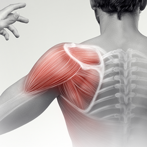 Shoulder Pain – What investigations should I order?
