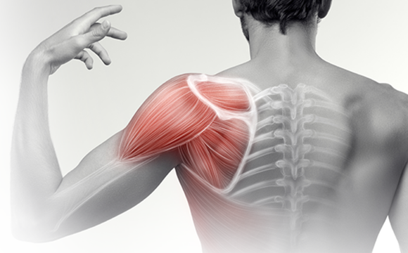 Shoulder Pain – What investigations should I order?